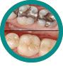 Obturatie - CMI DentalCare - dentistiasi.ro
