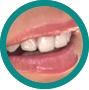 Relaxare - CMI DentalCare - dentistiasi.ro