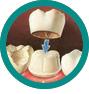 Tratamente protetice - CMI DentalCare - dentistiasi.ro