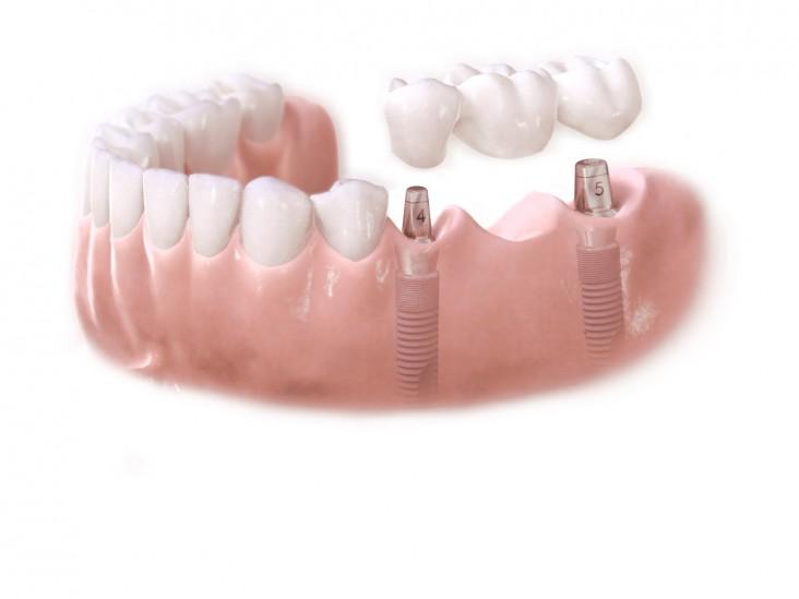 dc-implant